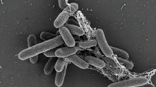 יידקים שצולמו במעבדה של פרופ' אוהד גלמור (צילום: דוברות שיבא)
