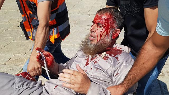 A Muslim worshipper is wounded during clashes with police on Temple Mount, August 11, 2019