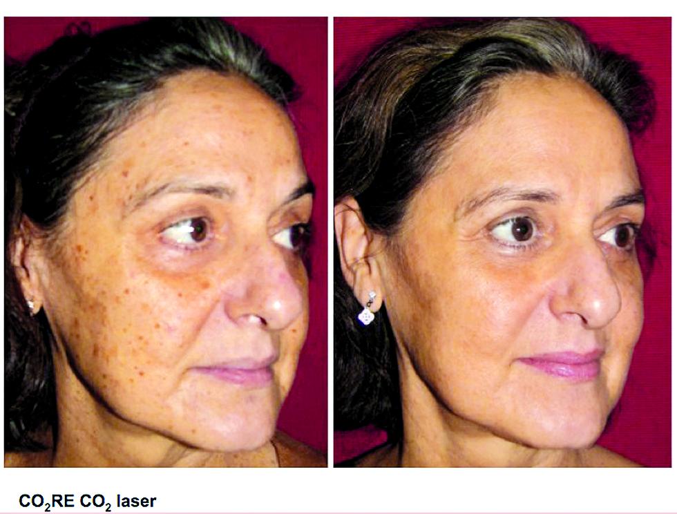 לפני ואחרי (צילום: ד