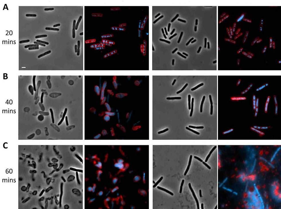 חיידקי אי-קולי שהודבקו בפאג'ים. החיידקים עם המנגנון החיסוני (משמאל) התאבדו לפני שהפאג'ים הצליחו לשכפל עצמם ולסכן את שאר המושבה, בעוד באלה ללא המנגנון הפעיל (מימין) הפאג'ים שגשגו באין מפריע (צילום: מתוך מסע הקסם המדעי, מכון ויצמן)