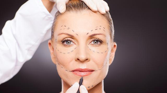 ניתוחים פלסטיים נשים מבוגרות ()