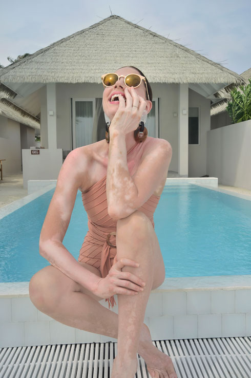 יודקביץ' חושפת את מחלת העור שלה, ויטיליגו (צילום: איתן טל, באדיבות מגזין לאשה)