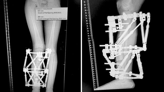 """Рентгенограмма ног пациентов с новыми устройствами. Предоставлена больницей """"Рамбам"""""""