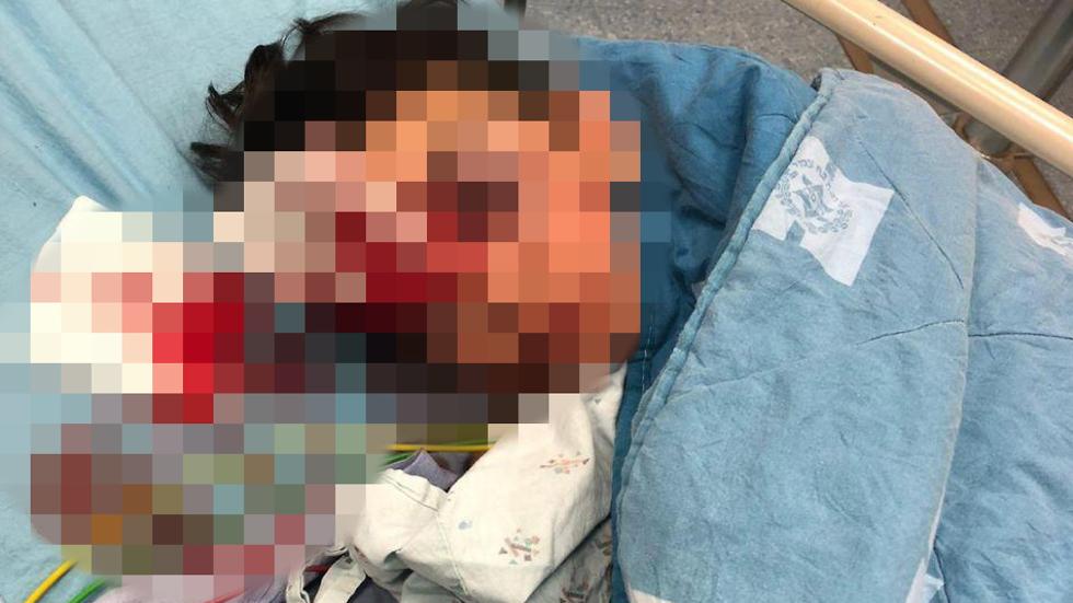 בן 9 מעיסאוויה פונה להדסה עם פגיעה קשה בפניו ובראשו ()