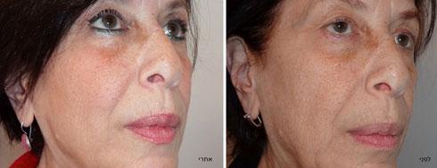 מאפשר להצעיר את מראה הפנים ולשפר אותם אבל יחד עם זאת לשמור על המראה הטבעי (צילום: APTOS PR)