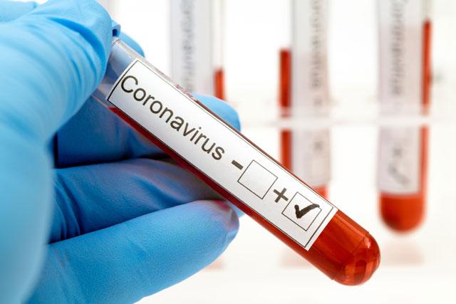 Сколько же осталось до победы над коронавирусом? Фото: shutterstock (Фото: Shutterstock)