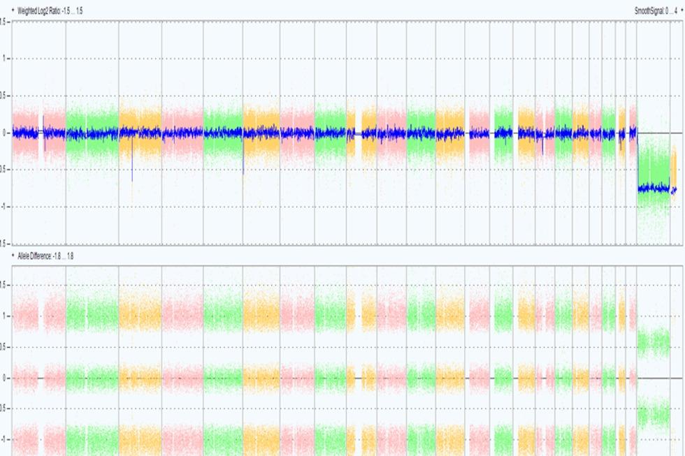 שבב גנטי תקין בהיריון (תכנת Chromosome Analysis Suite, חברת ThermoFisher Scientific))