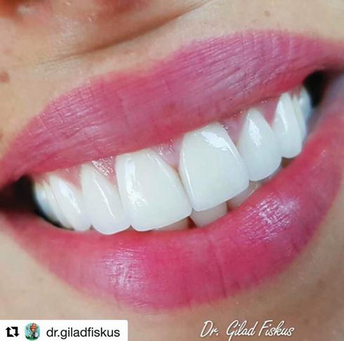 """כמעט כל מי שלא מרוצה מהחיוך שלו יכול לתקן אותו בעזרת הדבקת ציפויים (צילום: המרכז לעיצוב החיוך – ד""""ר גלעד פיסקוס)"""