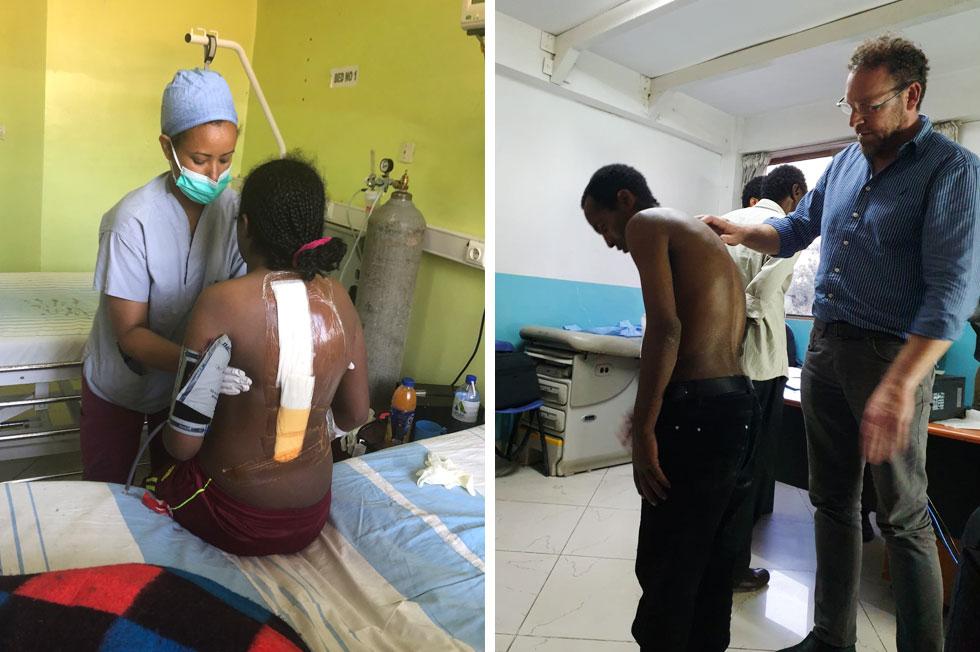 """מטפלים בילדים חולי עקמת בבית החולים באדיס אבבה (מימין: ד""""ר אנגל). """"אין שם רופאים שמכירים את התחום"""" (צילום: אלבום פרטי)"""