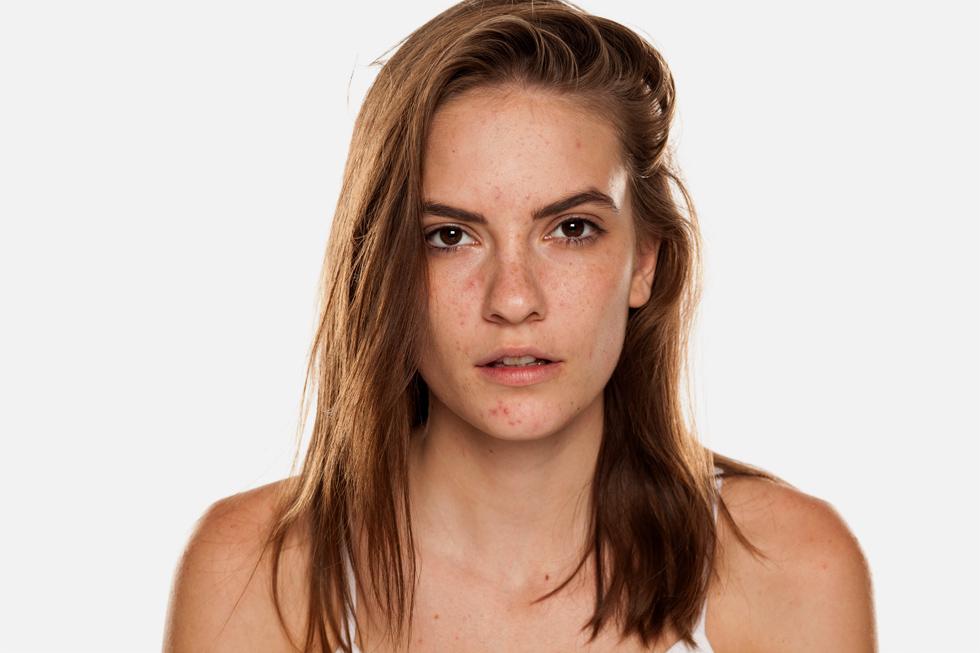 המסכה יוצרת המוןן בעיות עור שלא היו קודם (צילום: Shutterstock)