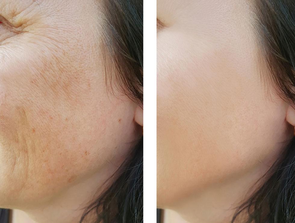 עור הפנים לפני ואחרי