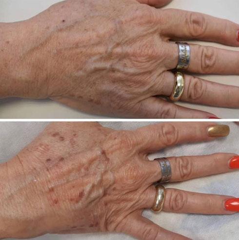 כפות הידיים לפני ואחרי