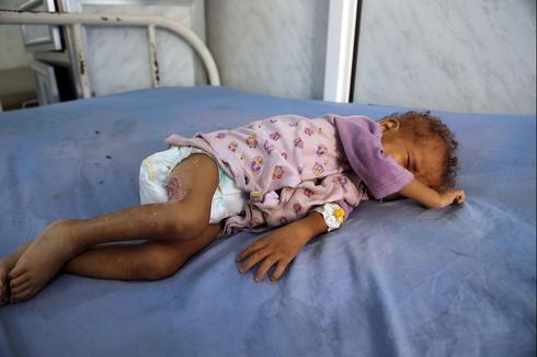 Malnourished child in Yemen