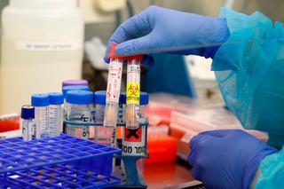 """Анализы на коронавирус в больнице """"Ихилов"""". Фото: AFP"""