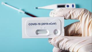 קורונה נגיף קורונה בדיקות סרולוגיות בדיקות דם