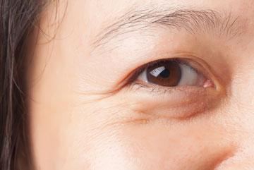 איזור העין הוא זה שהכי מסגיר את הגיל האמיתי שלך (צילום: shutterstock)