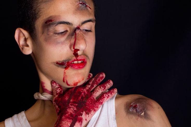 הפצוע המדומה. אפקטים של חבורות וחתכים (צילום: אלון קירה, ביה''ס לצילום)