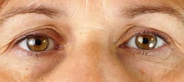 נפיחויות וכתמים מתחת לעיניים (צילום: shutterstock)