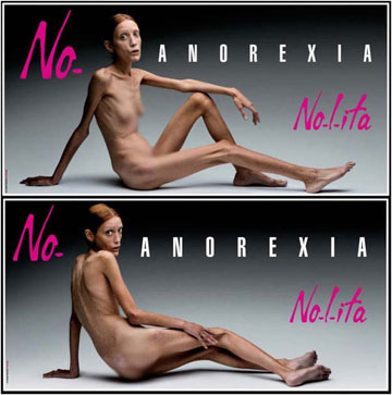 הדוגמנית איזבלה קארו בקמפיין נגד אנורקסיה, שצולם זמן קצר לפני שנפטרה מהמחלה