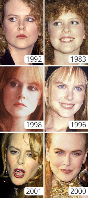 כבר לא דומה במאום ליפהפייה הוויטאלית שהיתה בשנות ה-90, עם החיוך הממיס והתלתלים הפרועים (צילום: gettyimages)