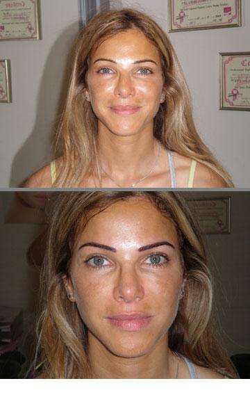 לפני ואחרי. טיפול הדגשת גבות אצל ג'ואן אטלי (צילום: ג'ואן אטלי)