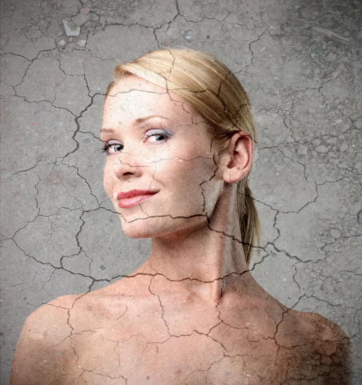 חוסר במים עלול לגרום לעור יבש וסדוק (צילום: shutterstock)
